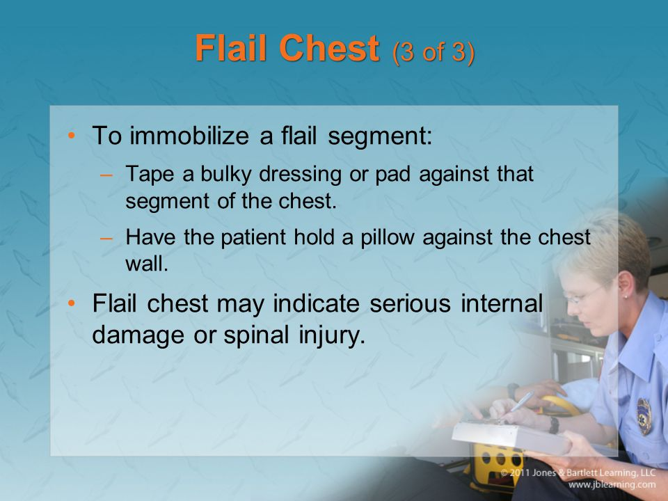 Flail Chest (3 of 3) To immobilize a flail segment: