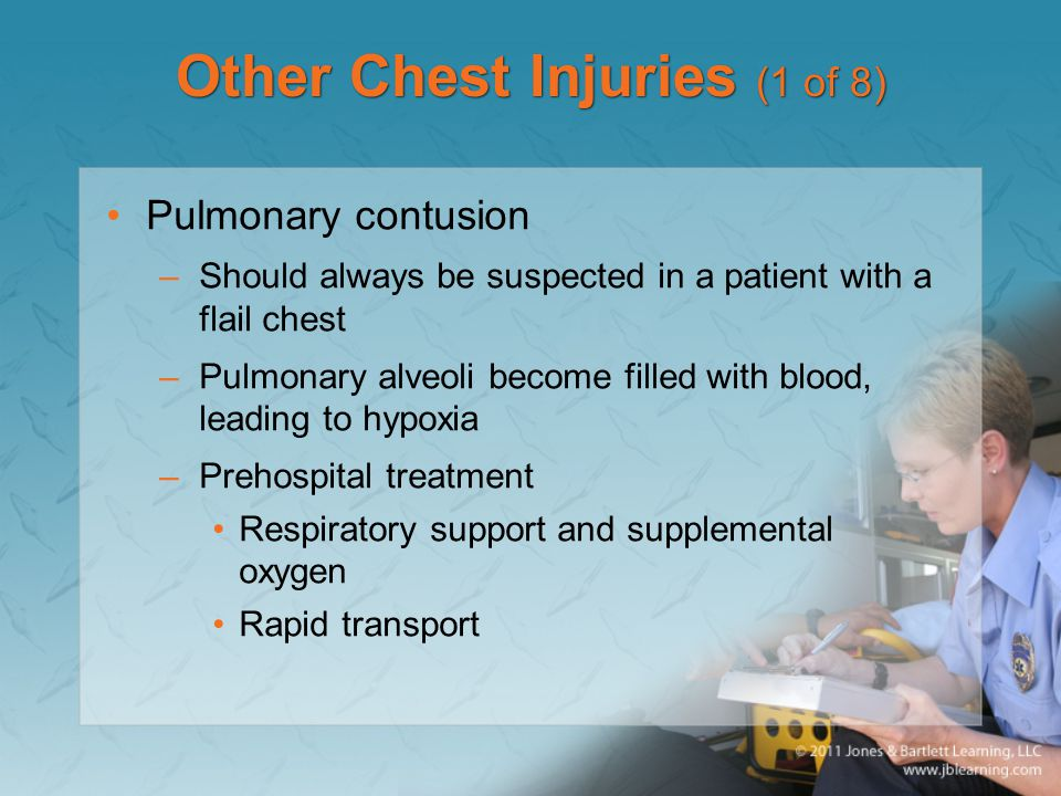 Other Chest Injuries (1 of 8)