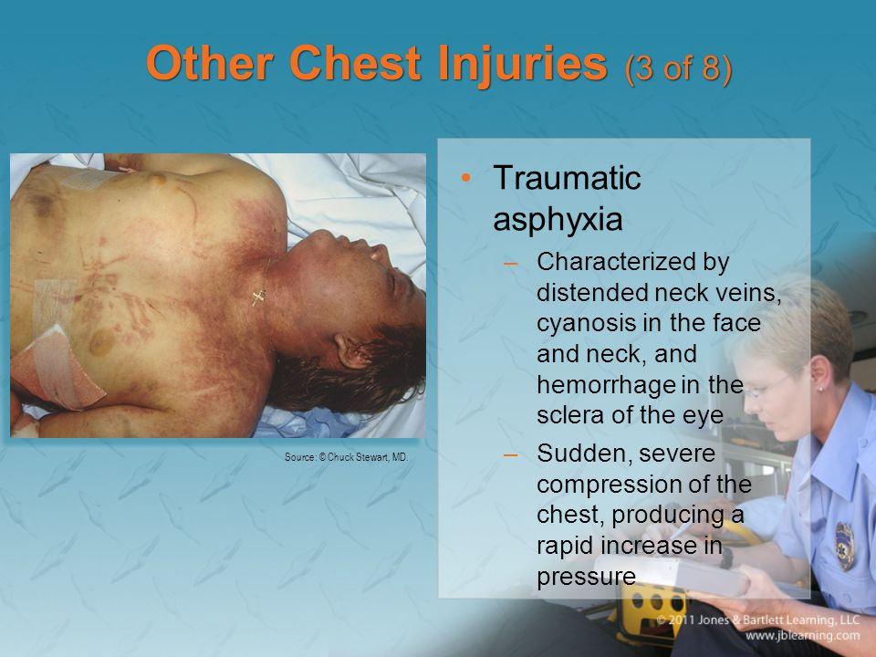 Other Chest Injuries (3 of 8)