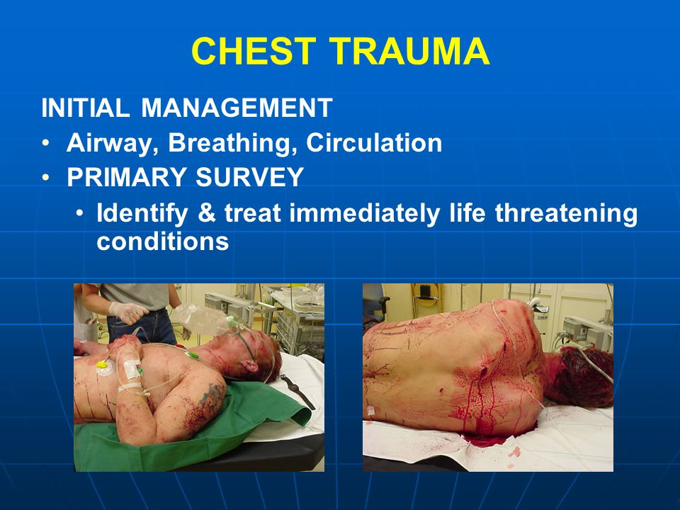 CHEST TRAUMA INITIAL MANAGEMENT Airway, Breathing, Circulation