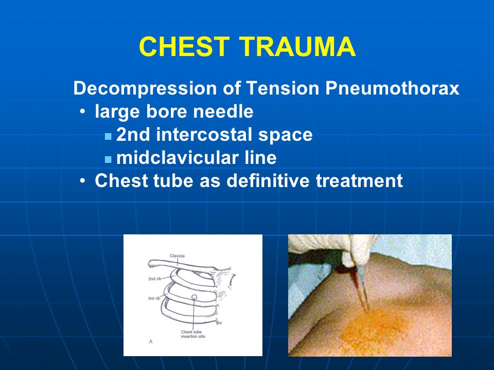 CHEST TRAUMA Decompression of Tension Pneumothorax large bore needle
