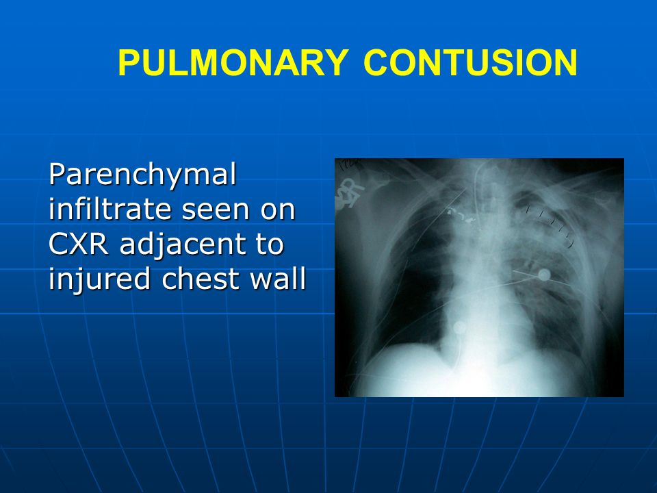PULMONARY CONTUSION Parenchymal infiltrate seen on CXR adjacent to injured chest wall