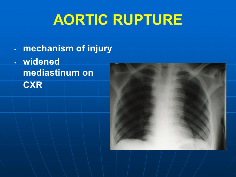 AORTIC RUPTURE mechanism of injury widened mediastinum on CXR
