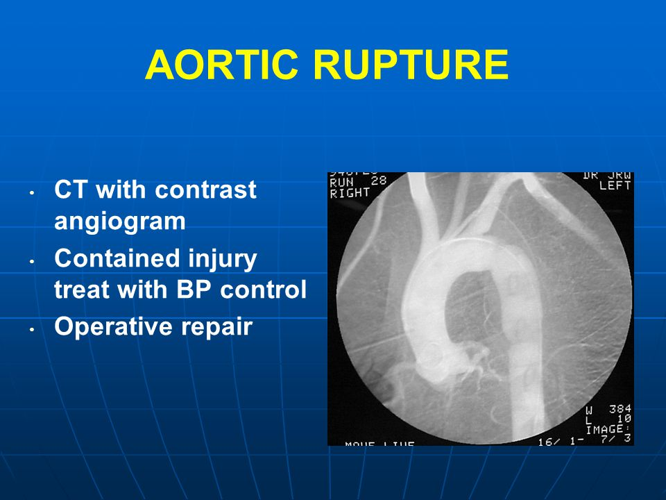 AORTIC RUPTURE CT with contrast angiogram