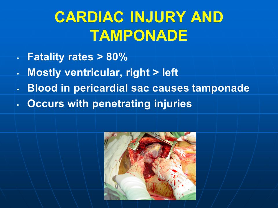 CARDIAC INJURY AND TAMPONADE