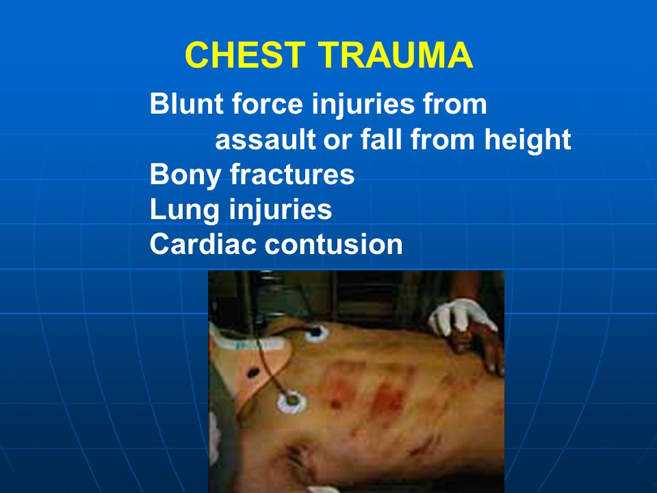 CHEST TRAUMA Blunt force injuries from assault or fall from height