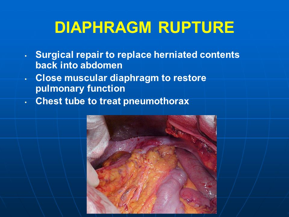 DIAPHRAGM RUPTURE Surgical repair to replace herniated contents back into abdomen. Close muscular diaphragm to restore pulmonary function.