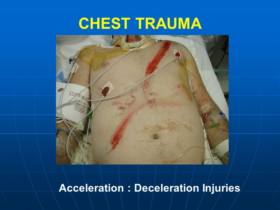 CHEST TRAUMA Acceleration : Deceleration Injuries