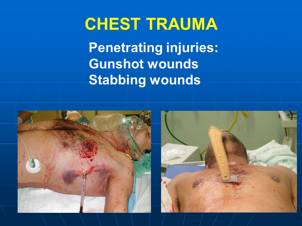 CHEST TRAUMA Penetrating injuries: Gunshot wounds Stabbing wounds