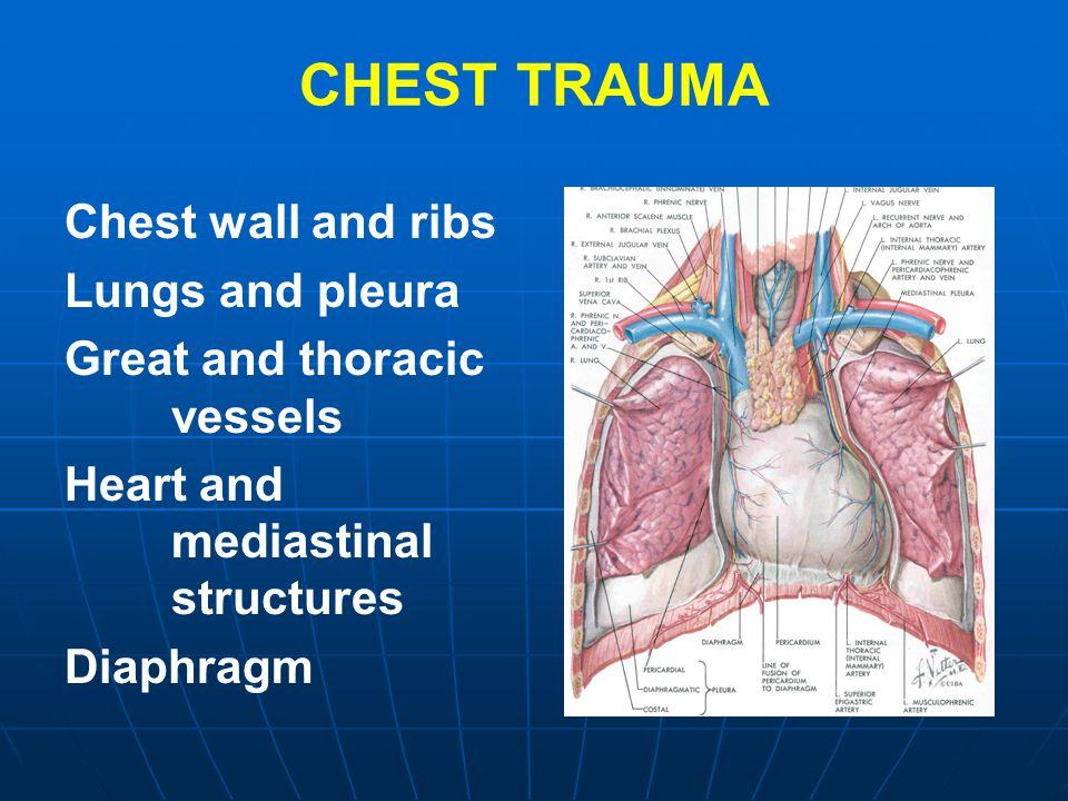 CHEST TRAUMA Chest wall and ribs Lungs and pleura