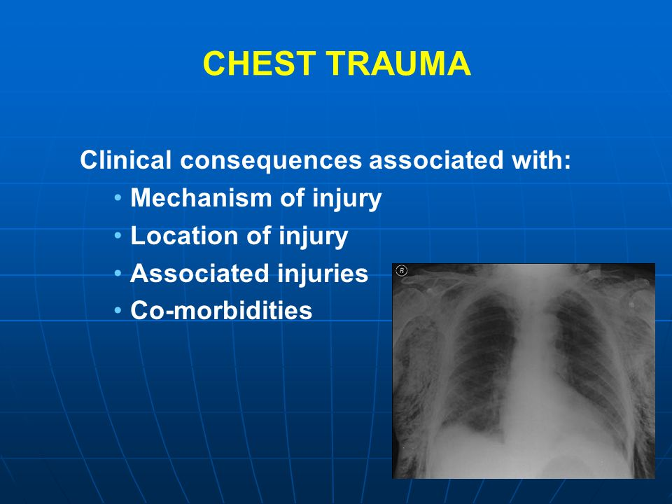 CHEST TRAUMA Clinical consequences associated with: