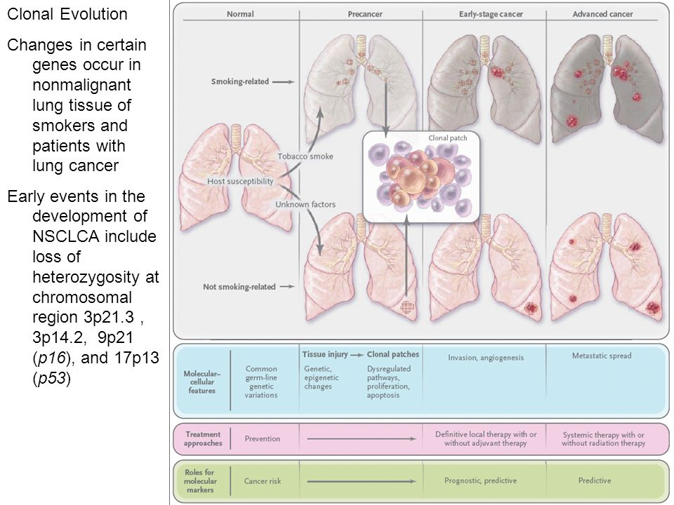 Clonal Evolution Changes in certain genes occur in nonmalignant lung tissue of smokers and patients with lung cancer.