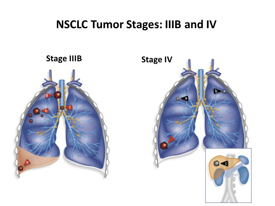 NSCLC Tumor Stages: IIIB and IV