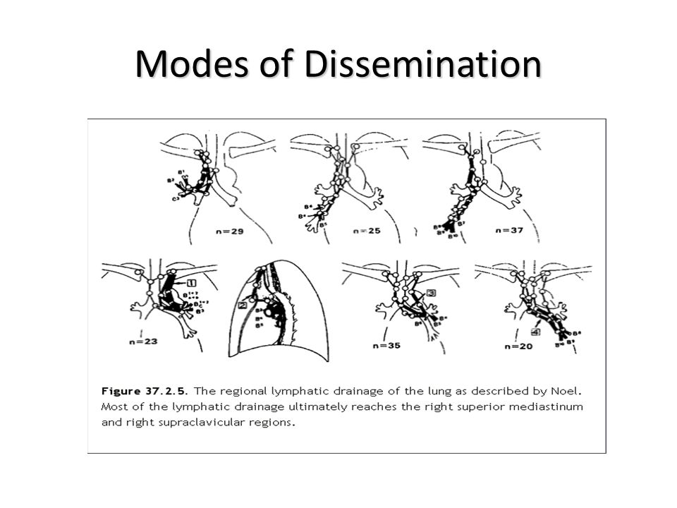 Modes of Dissemination