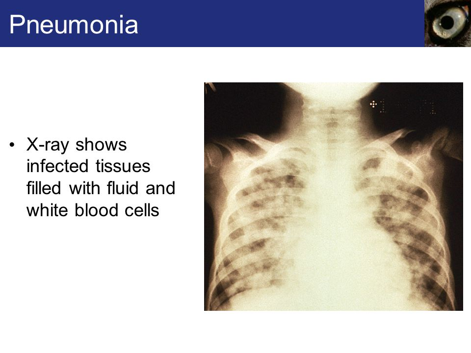 Pneumonia X-ray shows infected tissues filled with fluid and white blood cells.