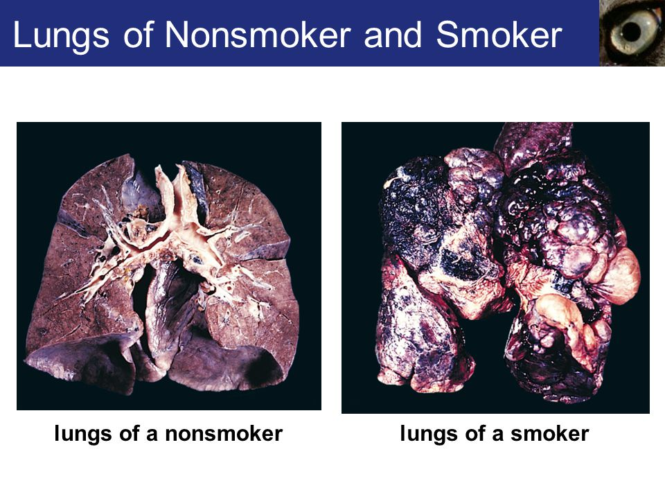 Lungs of Nonsmoker and Smoker