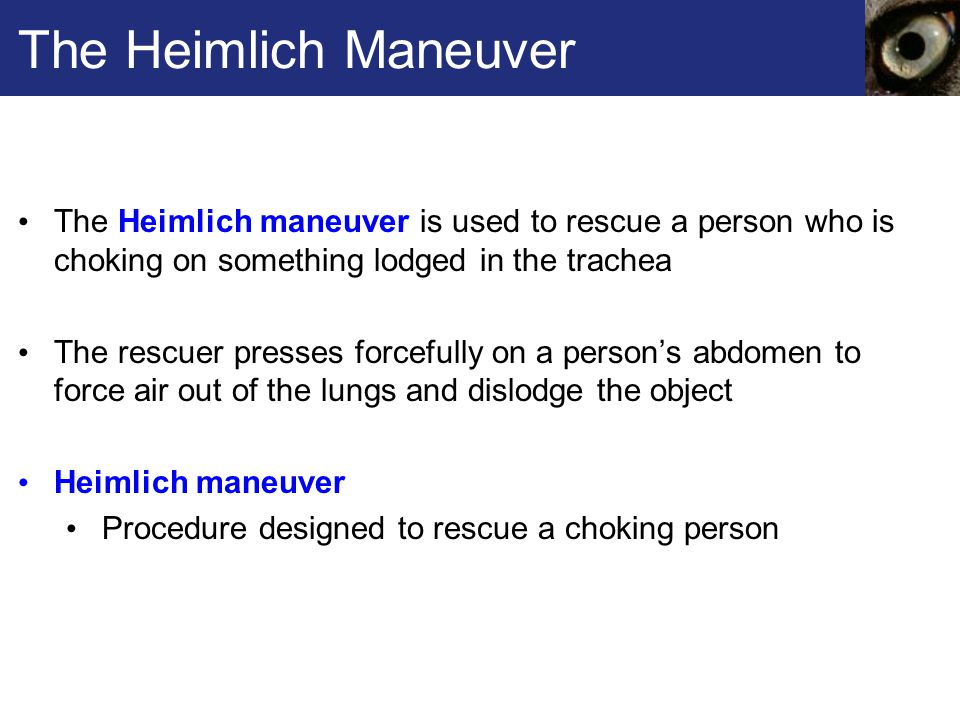 The Heimlich Maneuver The Heimlich maneuver is used to rescue a person who is choking on something lodged in the trachea.