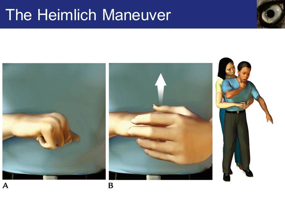 The Heimlich Maneuver