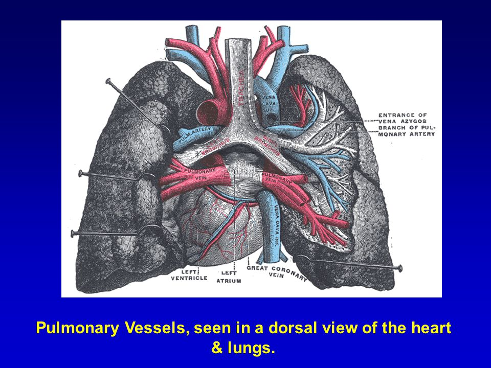 Pulmonary Vessels, seen in a dorsal view of the heart & lungs.