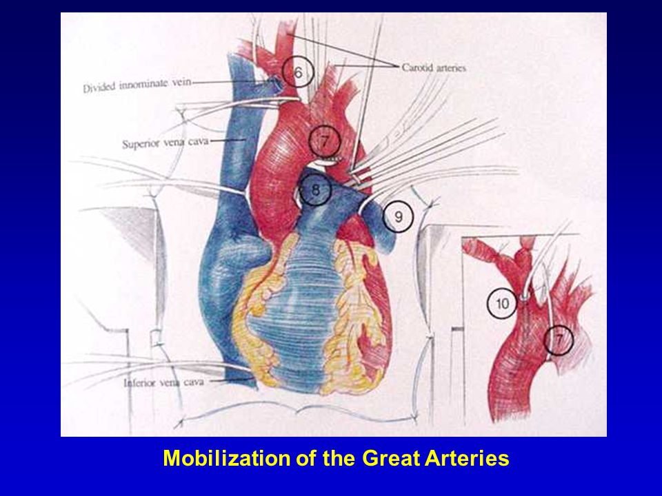 Mobilization of the Great Arteries