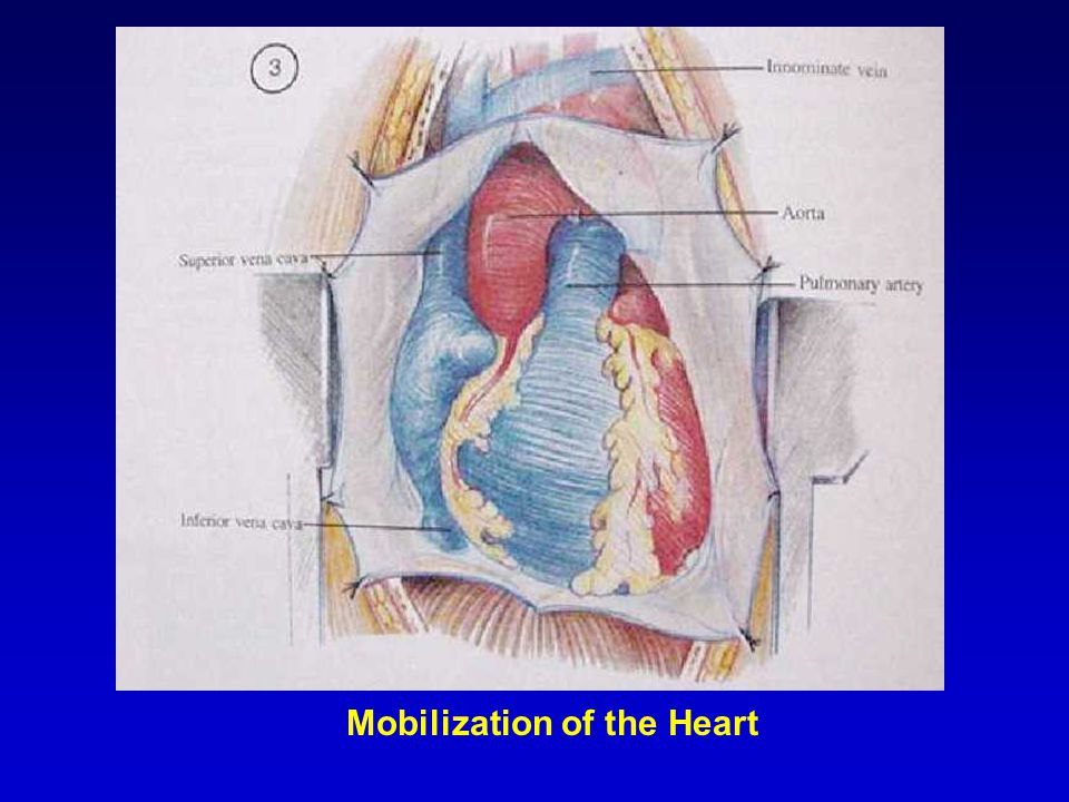 Mobilization of the Heart