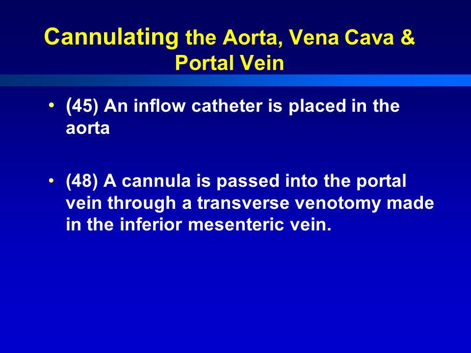 Cannulating the Aorta, Vena Cava & Portal Vein