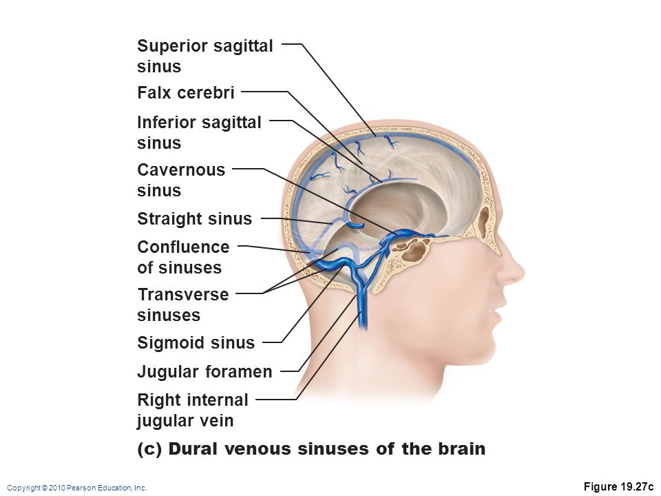 (c) Dural venous sinuses of the brain