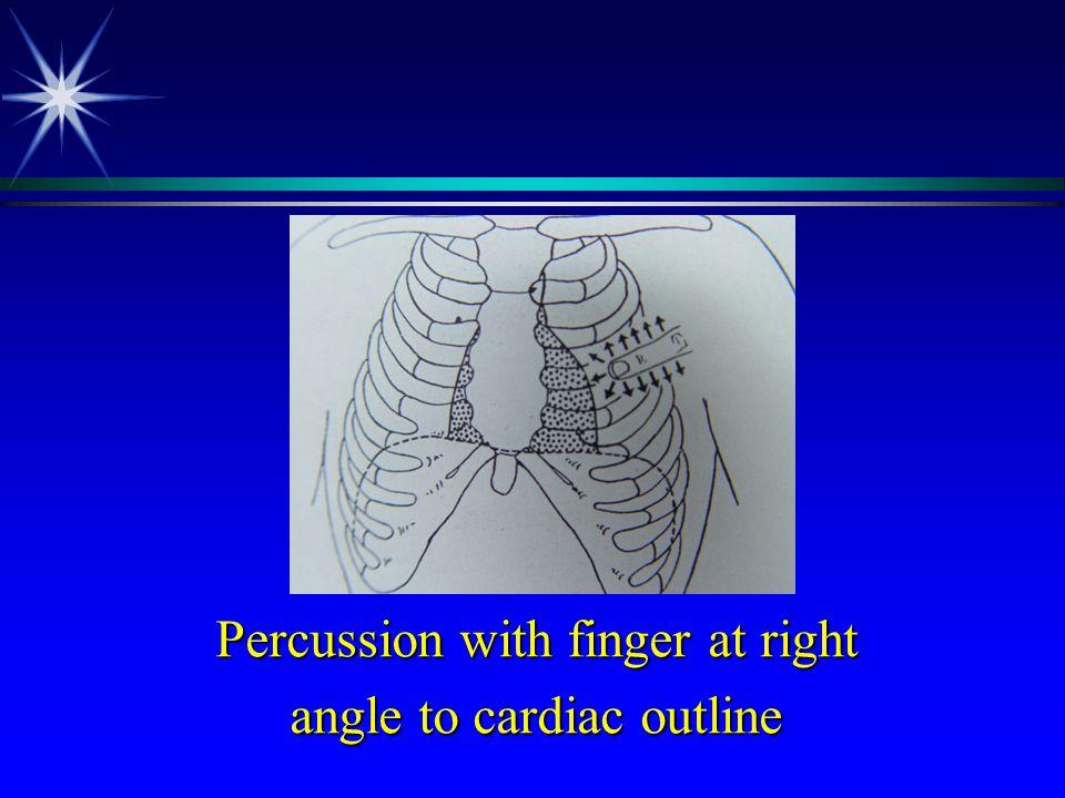 Percussion with finger at right angle to cardiac outline