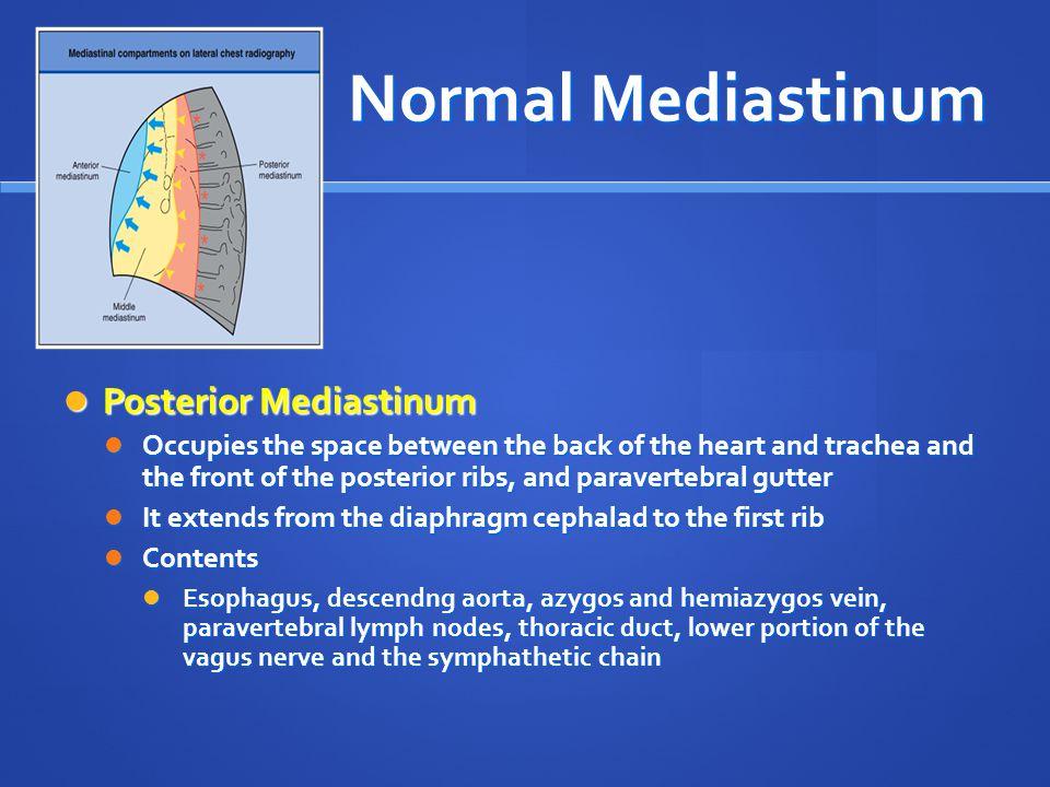 Normal Mediastinum Posterior Mediastinum