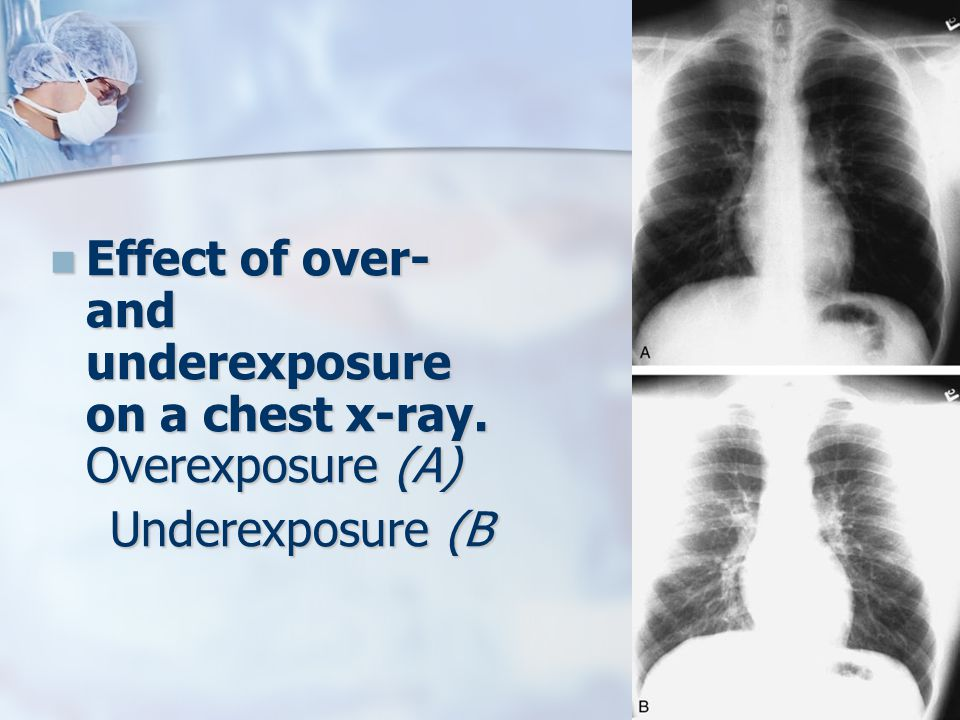 Effect of over- and underexposure on a chest x-ray. Overexposure (A)