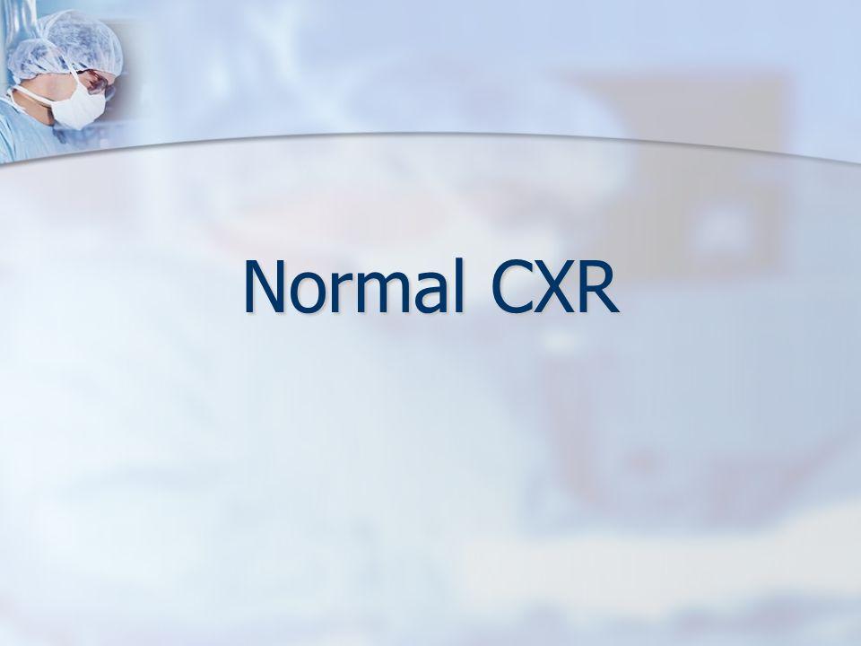 Normal CXR