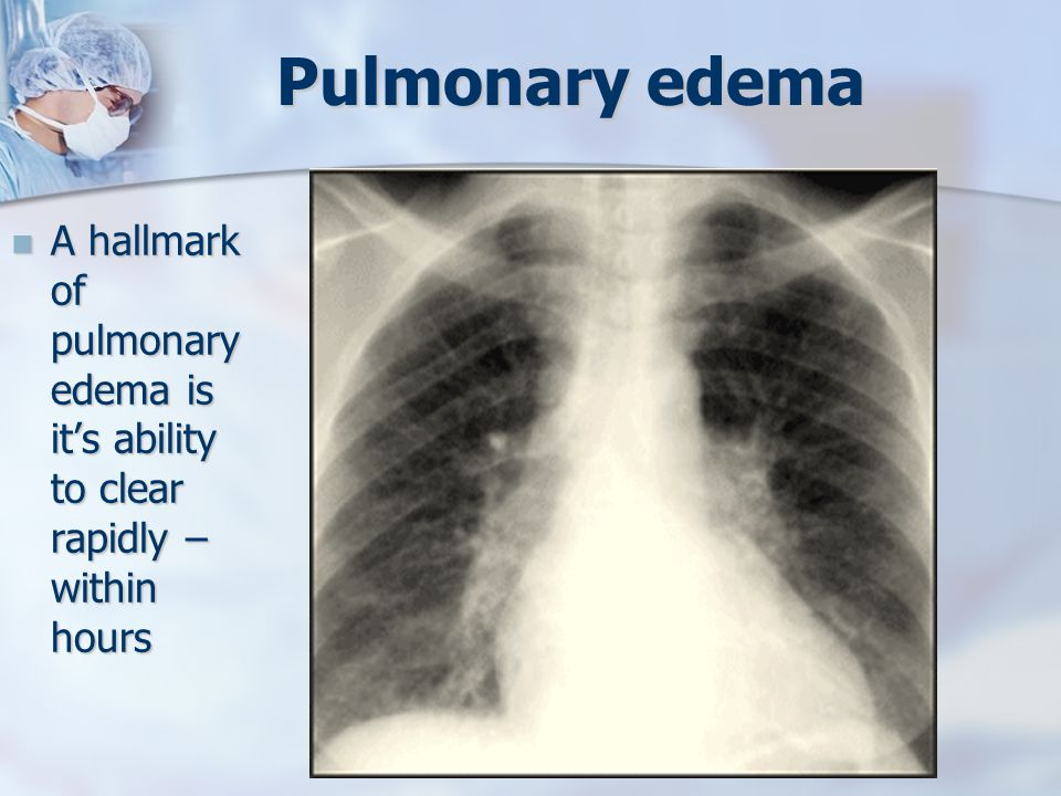 Pulmonary edema A hallmark of pulmonary edema is it's ability to clear rapidly – within hours