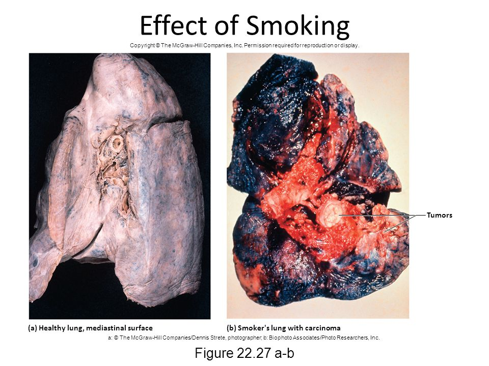 Effect of Smoking Figure 22.27 a-b Tumors