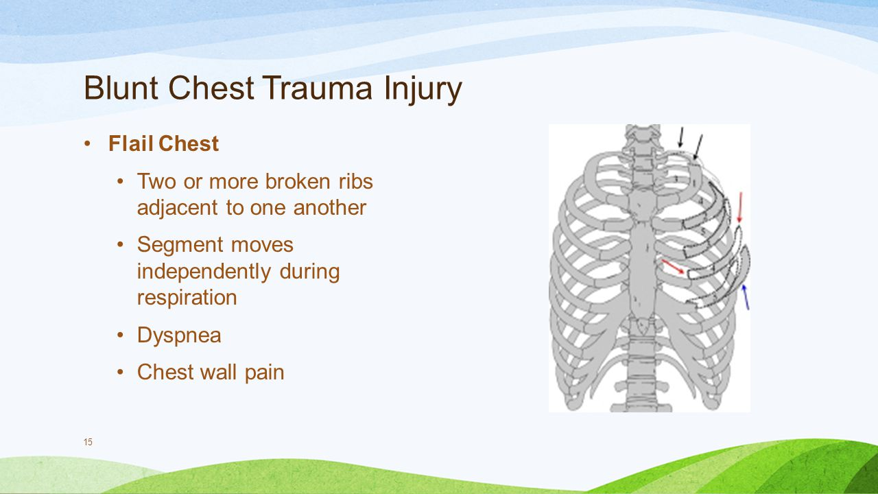 blunt chest trauma Studies of the consequences and treatment of blunt thoracic trauma (btt) remain hampered by a varying pathologic definition of the disease entities typically classified as btt include chest wall lesions such as rib fractures, flail chest and soft tissue contusion intrapleural lesions such as hemothorax and pneumothorax.