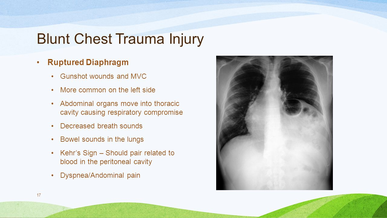 Blunt Chest Trauma Injury