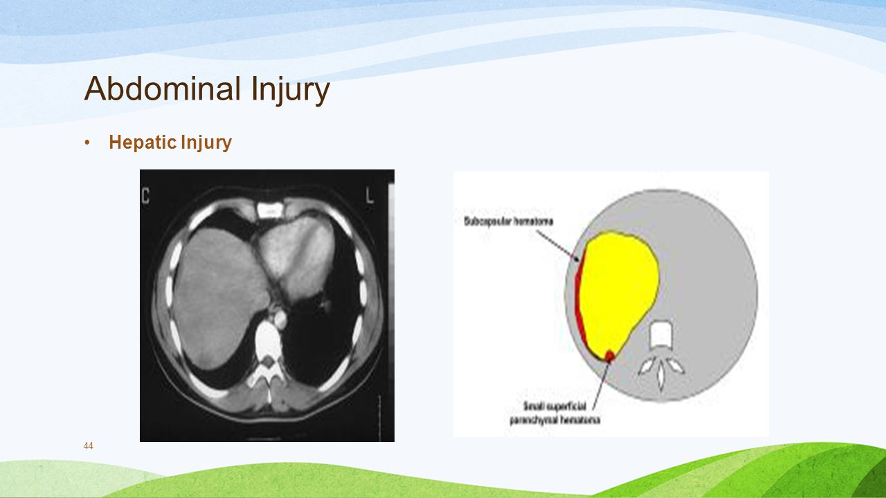 Abdominal Injury Hepatic Injury
