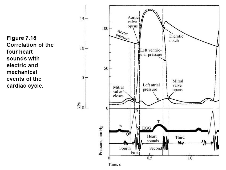 fig_07_15 Figure 7.15 Correlation of the four heart sounds with electric and mechanical events of the cardiac cycle.