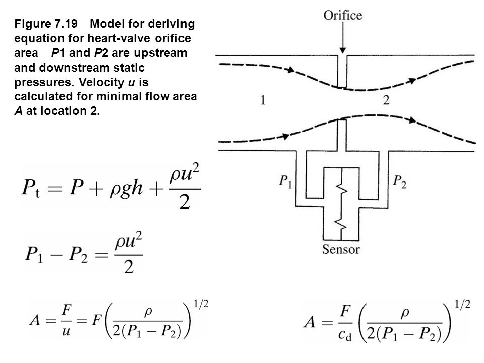 Figure 7.19 Model for deriving equation for heart-valve orifice area P1 and P2 are upstream and downstream static pressures. Velocity u is calculated for minimal flow area A at location 2.