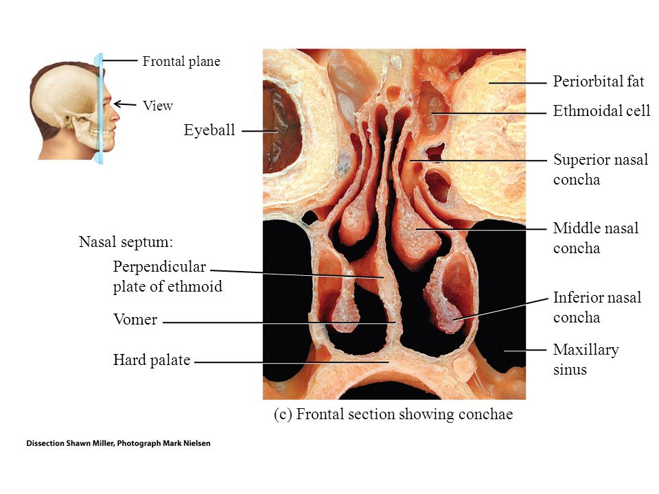 (c) Frontal section showing conchae