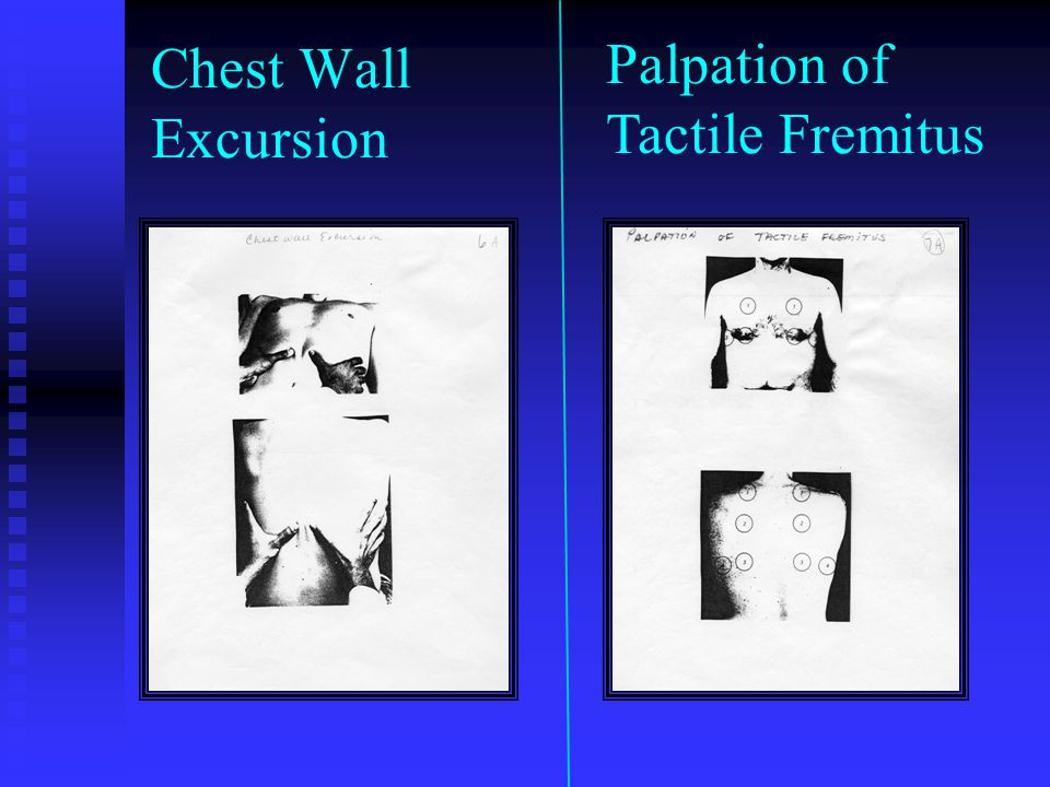 Chest Wall Excursion Palpation of Tactile Fremitus