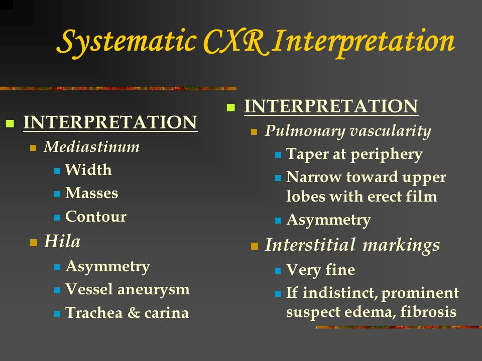 Systematic CXR Interpretation