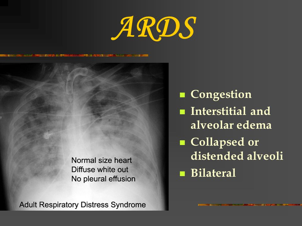 ARDS Congestion Interstitial and alveolar edema