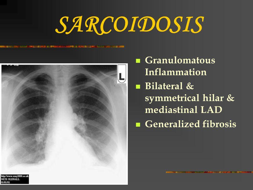 SARCOIDOSIS Granulomatous Inflammation