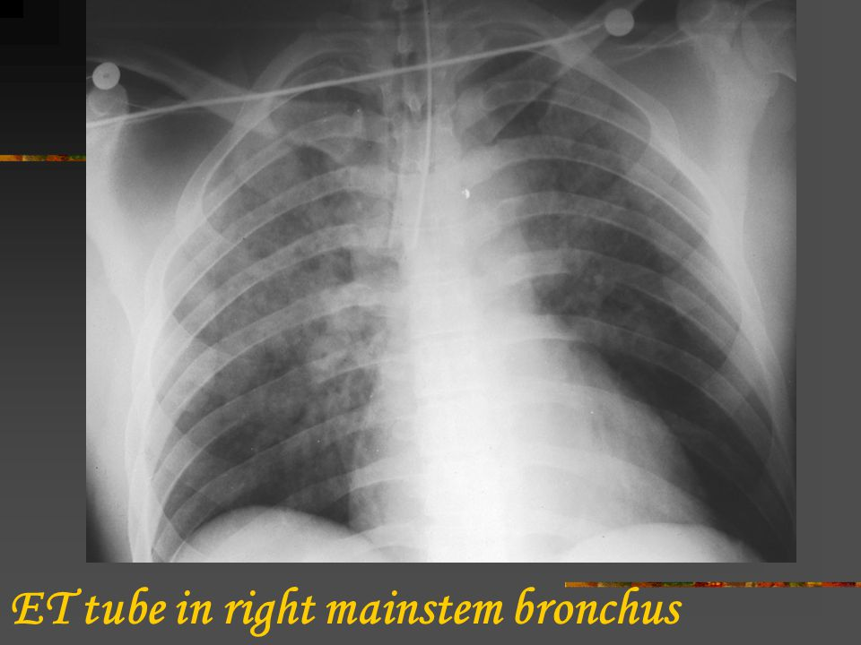 ET tube in right mainstem bronchus