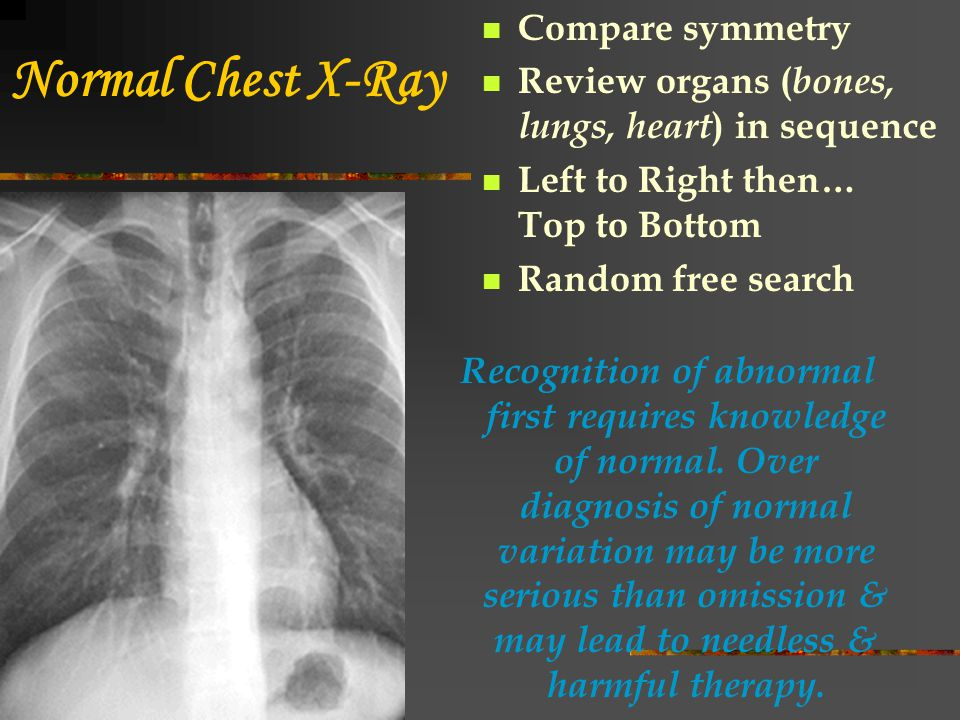 Normal Chest X-Ray Compare symmetry