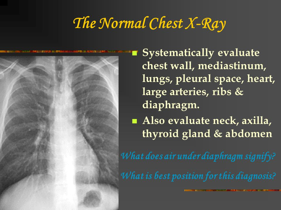 The Normal Chest X-Ray Systematically evaluate chest wall, mediastinum, lungs, pleural space, heart, large arteries, ribs & diaphragm.