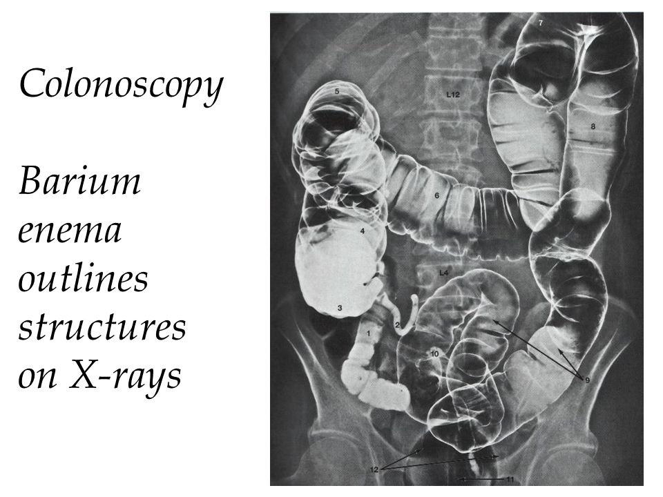Colonoscopy Barium enema outlines structures on X-rays