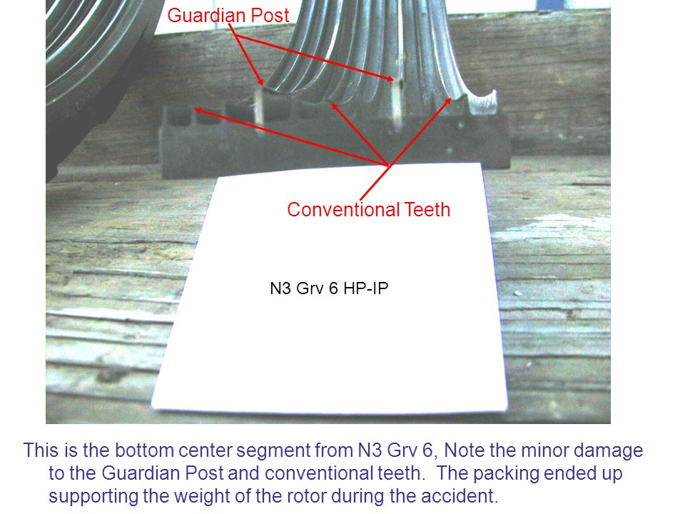 Guardian Post Conventional Teeth
