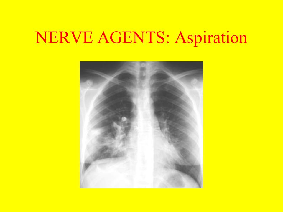 NERVE AGENTS: Aspiration