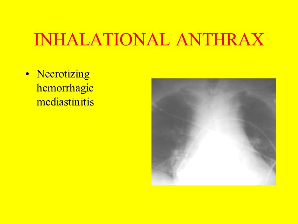 INHALATIONAL ANTHRAX Necrotizing hemorrhagic mediastinitis